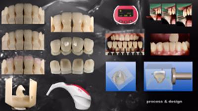 まるで本物のような詰め物被せ物を作製する歯科技工所