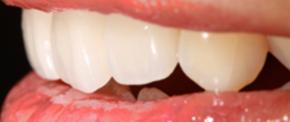 まるで本物の歯のような技巧