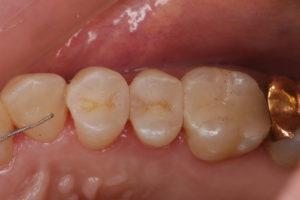 白い歯の被せ物症例①