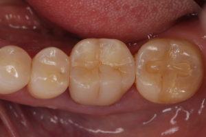 白い歯の詰め物症例②