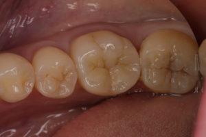 白い歯の詰め物症例③
