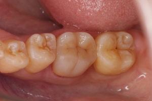 白い歯の詰め物症例①